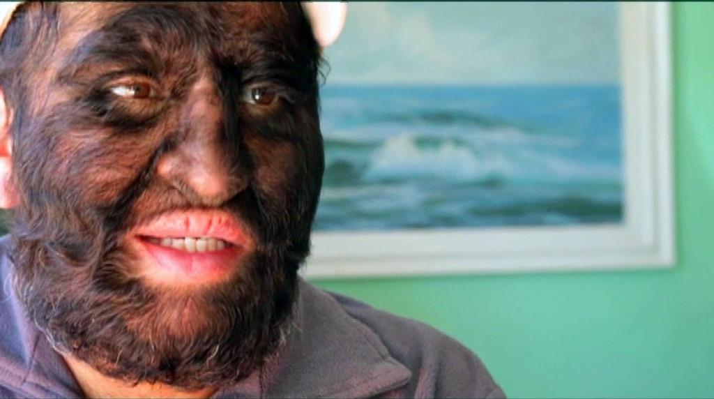 Самый волосатый человек в мире. Человек волк. Мексика