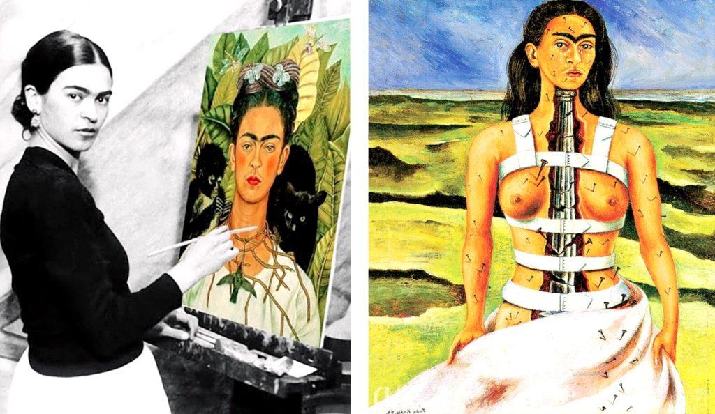 Перенесшая множество операций, но не сломленная художница Фрида Кало. Картина Сломанная Колонна, Мексика